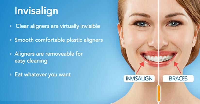 Grandville Invisalign Dentists